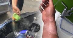 Chlapík otvoril viečko chladiča na starom BMW s naštartovaným motorom (Blbý nápad)